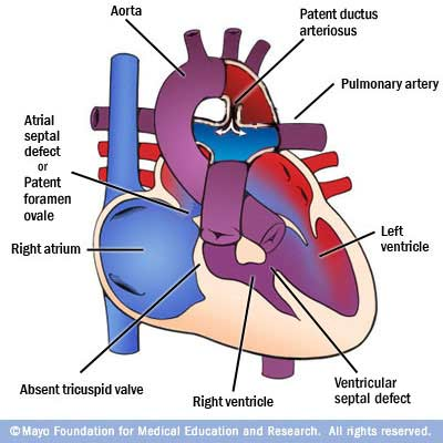 2d the problems hypoplastic right ventricle tricuspid valve tricuspid atresia ccuart Gallery